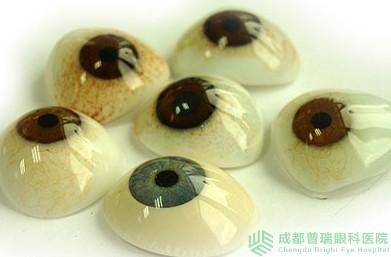 义眼片_成都普瑞眼科医院 义眼片与义眼台植入手术