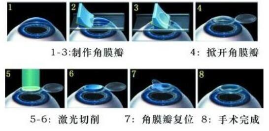 近视眼手术会失明吗_准分子激光近视手术-